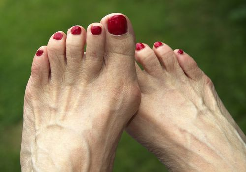 Woman's feet with bunions