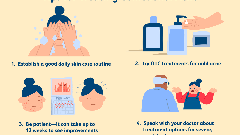 Comedonal Acne Symptoms Causes Treatment Prevention
