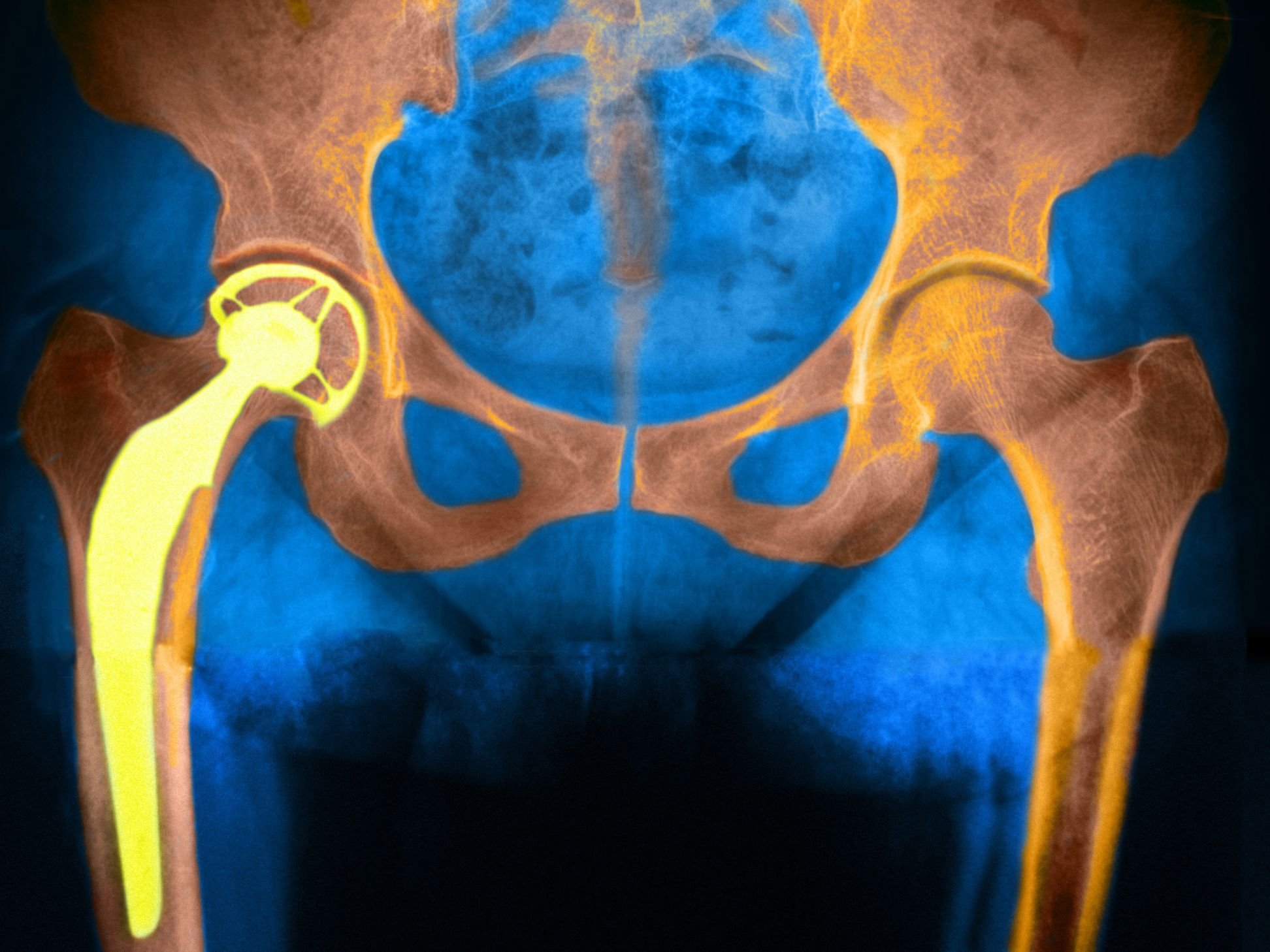 How Long Hip Replacements Last