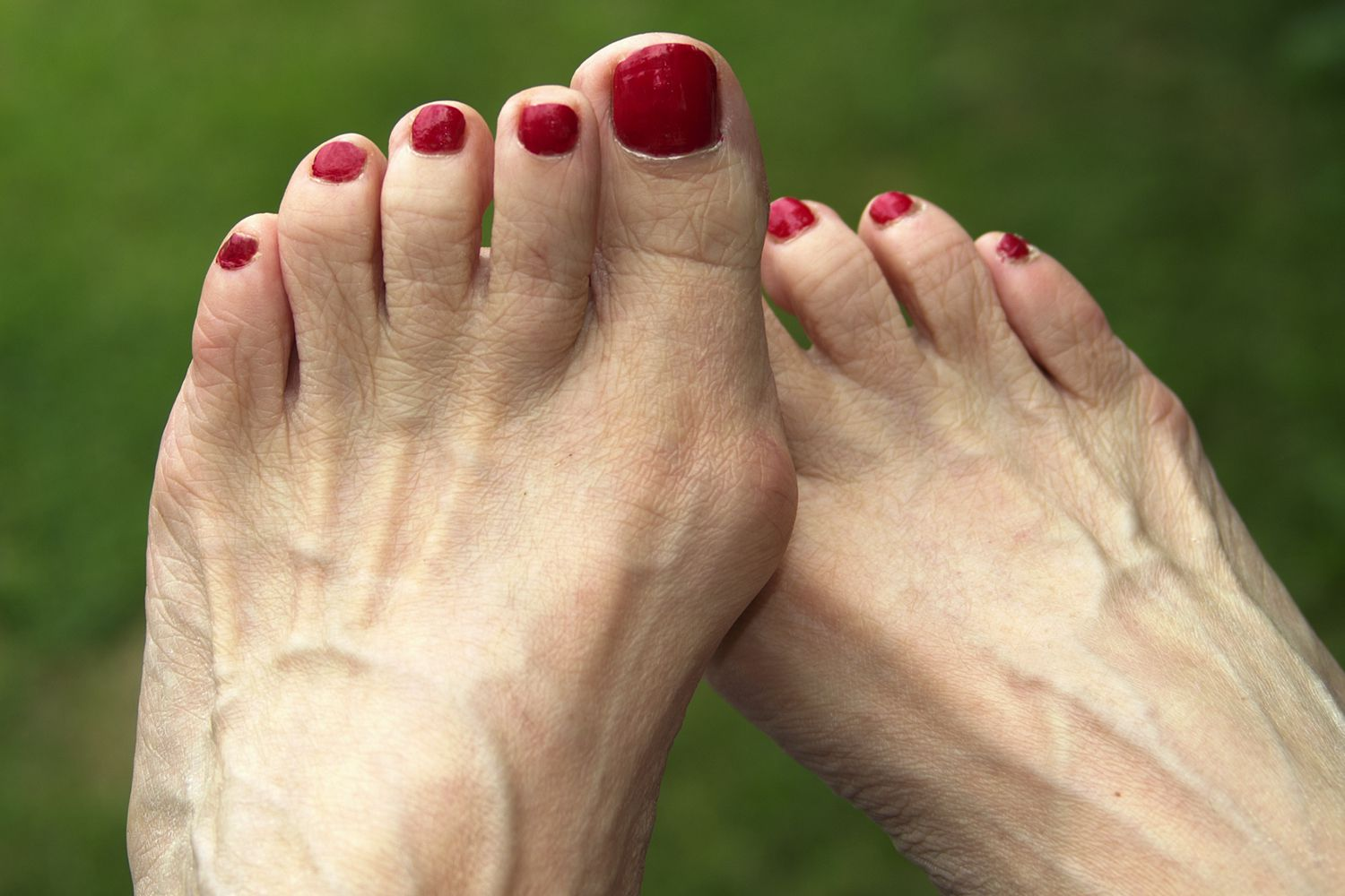 A large bunion on a woman's foot
