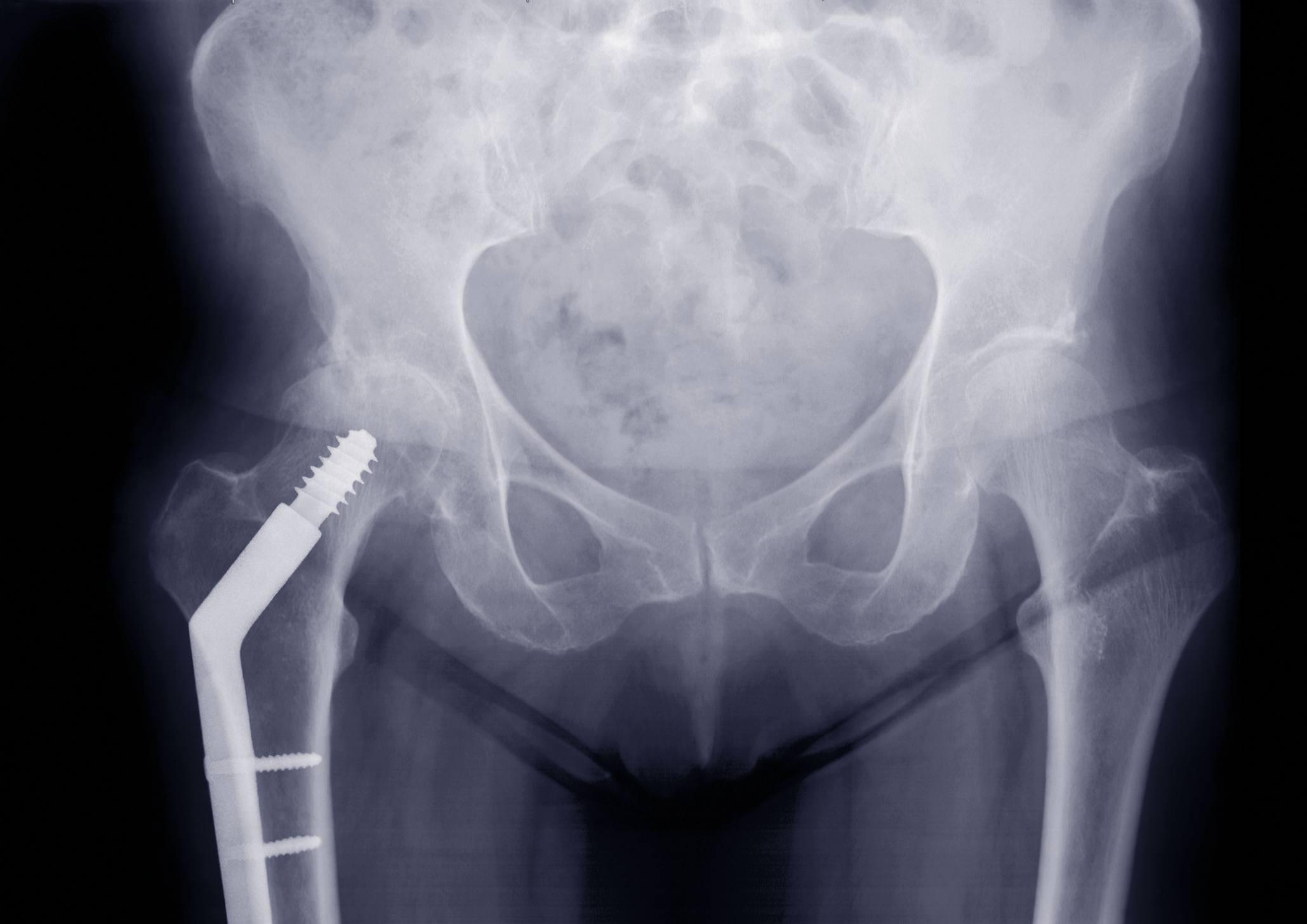Broken Bones In The Hip Knee Or Ankle