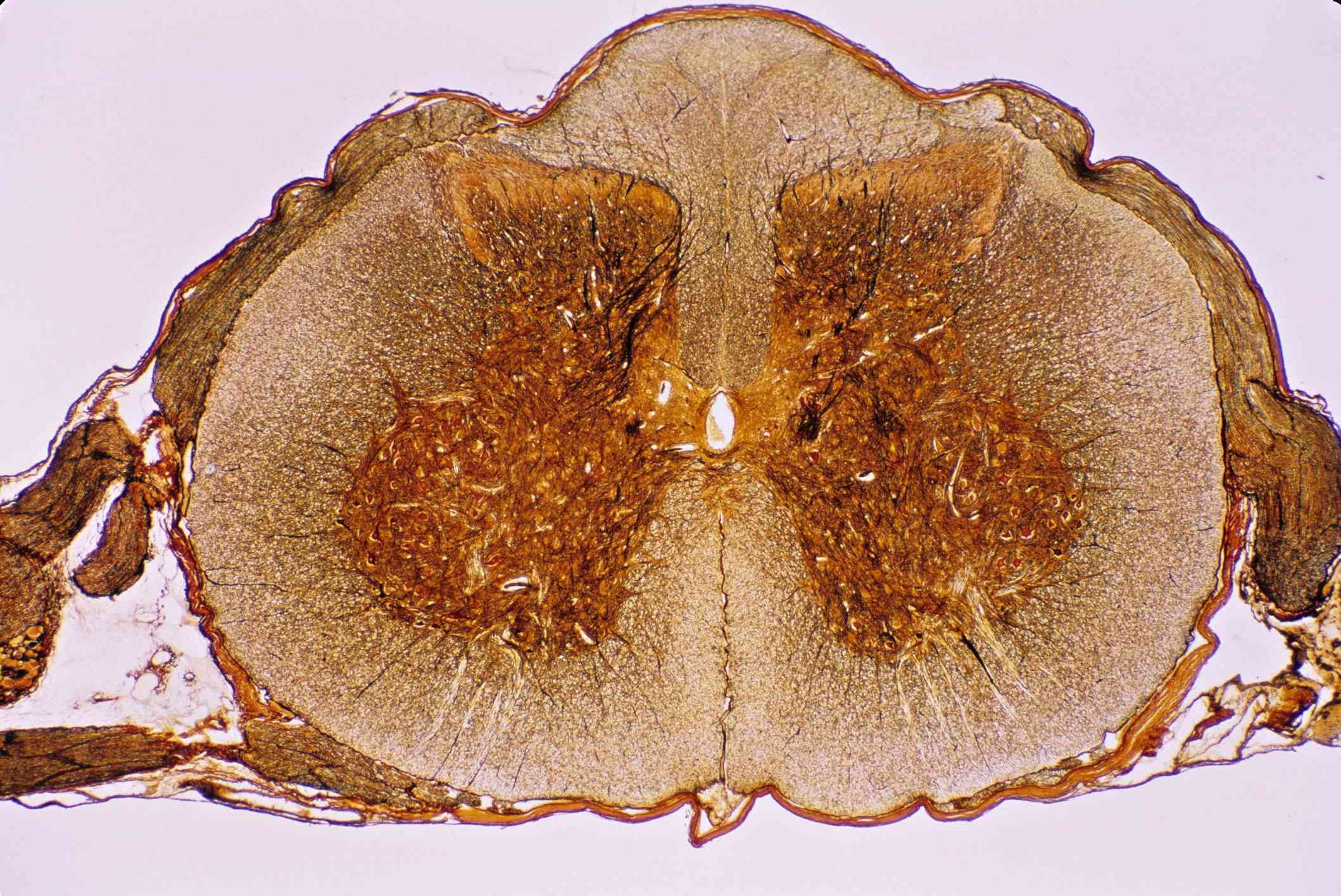 SPINAL CORD CROSS SECTION, 5X SHOWS: GRAY MATTER (GOLDEN BUTTERFLY), WHITE MATTER, CENTRAL CANAL, DORSAL & VENTRAL ROOT, DORSAL ROOT GANGLION, MENINGES, DORSAL HORN, VENTRAL (ANTERIOR) HORN, & ANTERIOR HORN CELLS (MOTOR NEURON CELL BODIES) - stock photo