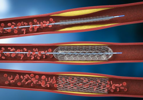 Balloon angioplasty procedure