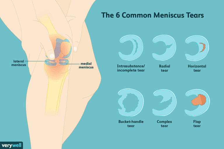 The 6 Common Meniscus Tears