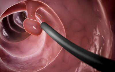 Colon polyp being removed