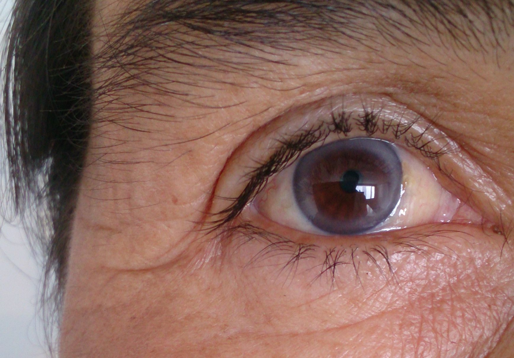Corneal Arcus What The Ring Around Your Cornea Means