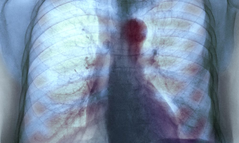 Aortic aneurysm, X-ray