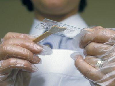 A pap smear slide