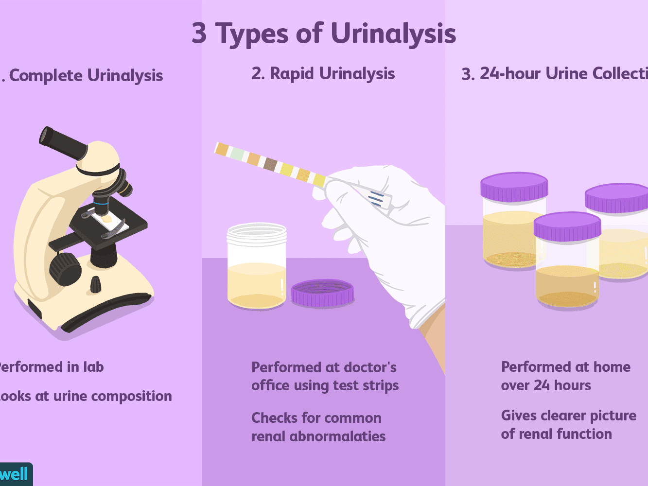 Urinalysis Uses Side Effects Procedure Results