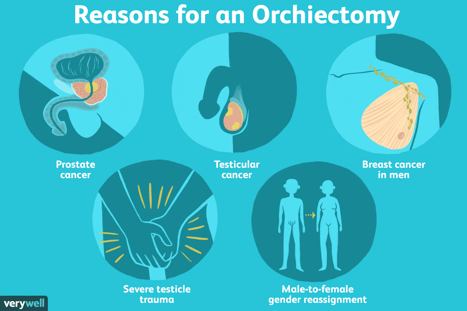 Reasons for an orchiectomy