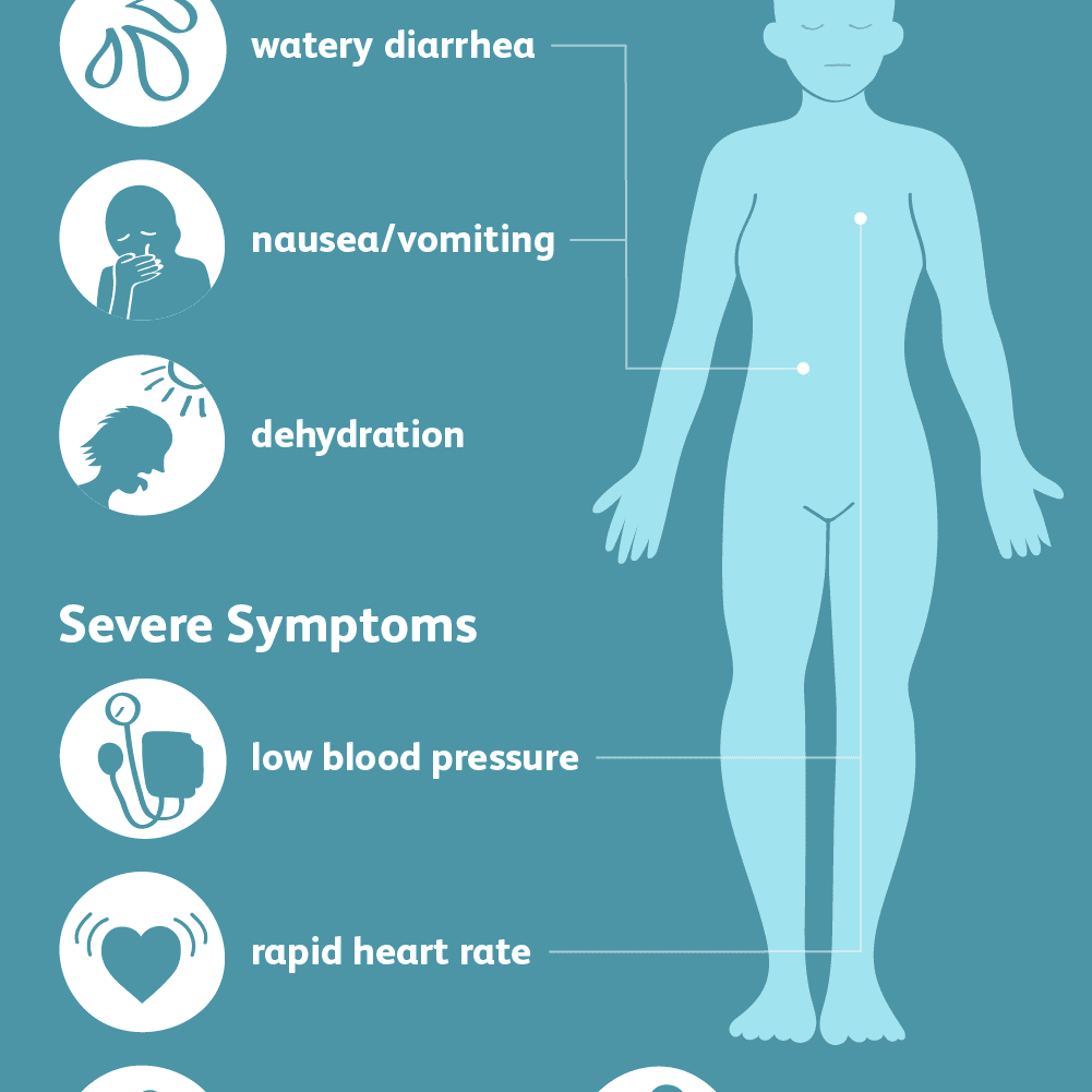 cholera signs symptoms and complications