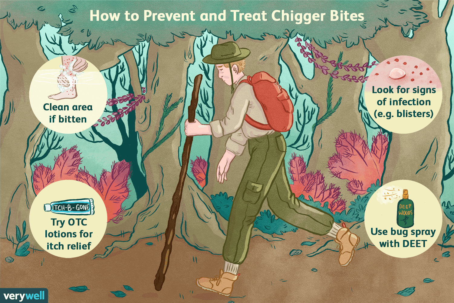 How to Recognize and Treat Chigger Bites