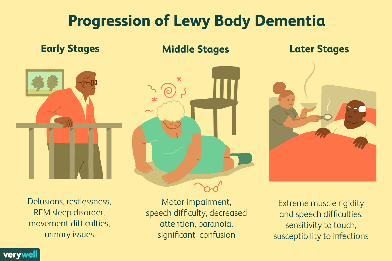 Stages and Progression of Lewy Body Dementia