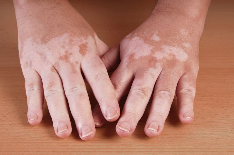 vitiligo and thyroid disease