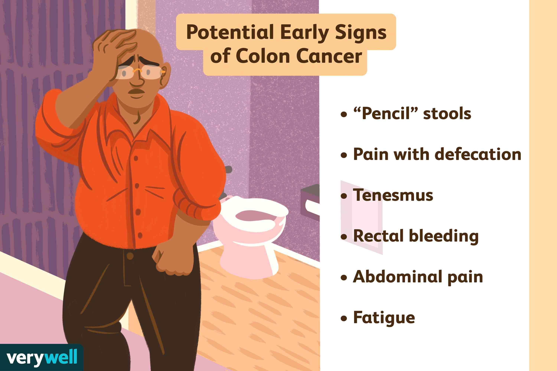 metastatic cancer of the colon symptoms)