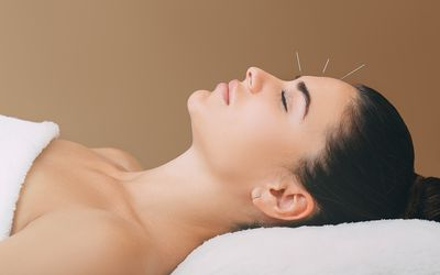 beautiful woman has a headache. Acupuncture treatment for migraines. Needles in the forehead of a woman close-up on a brown background