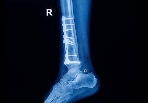Ankle x-ray showing an implant with a screw that has become detached