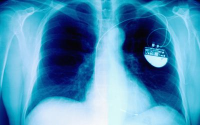 A chest x-ray showing a pacemaker in place on the left side.