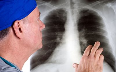 Doctor Lo Ng At A Chest X Ray As A Step In Diagnosing Lung Cancer