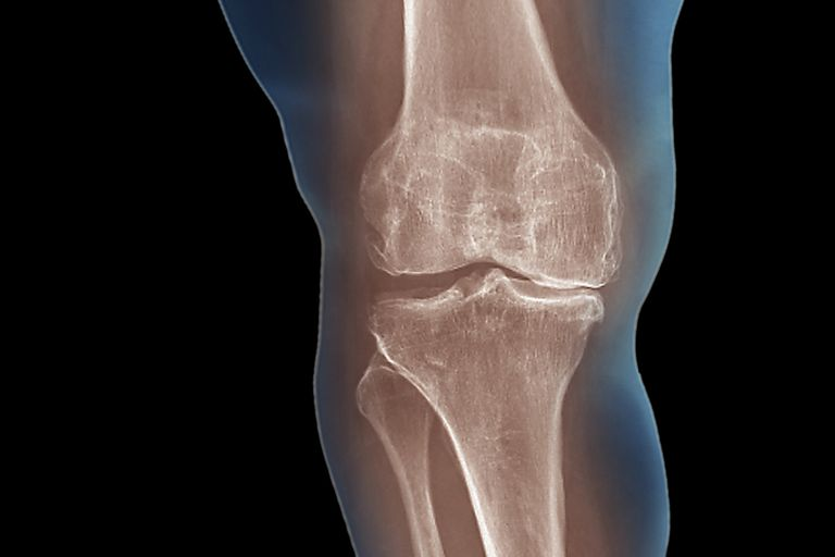 A X-ray showing arthritis of the knee.