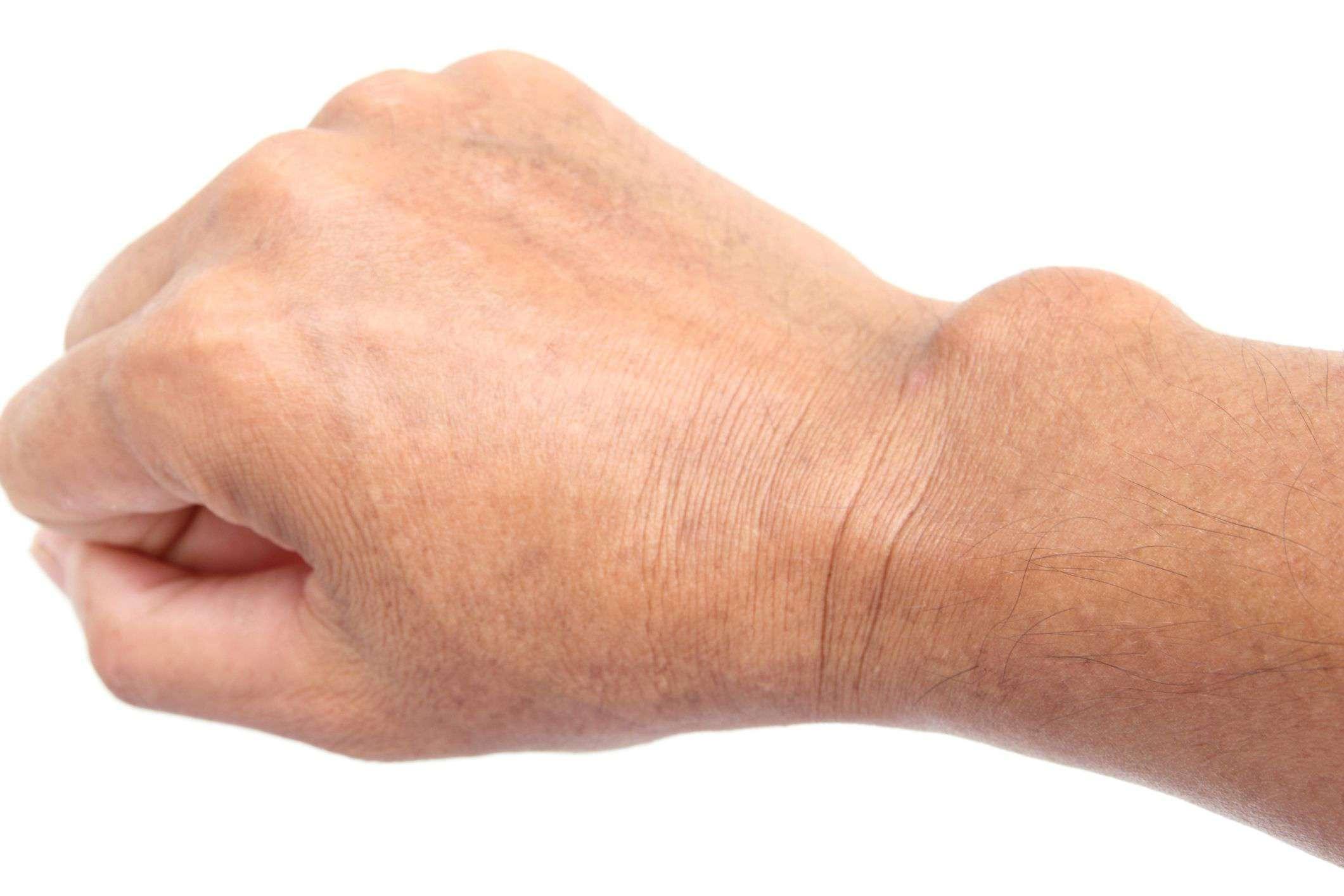 Hand lump