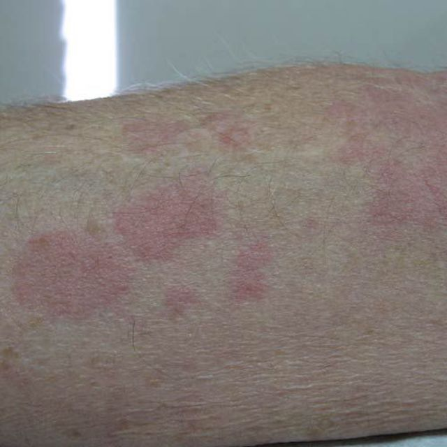 Close-Up of Overlapping Hives