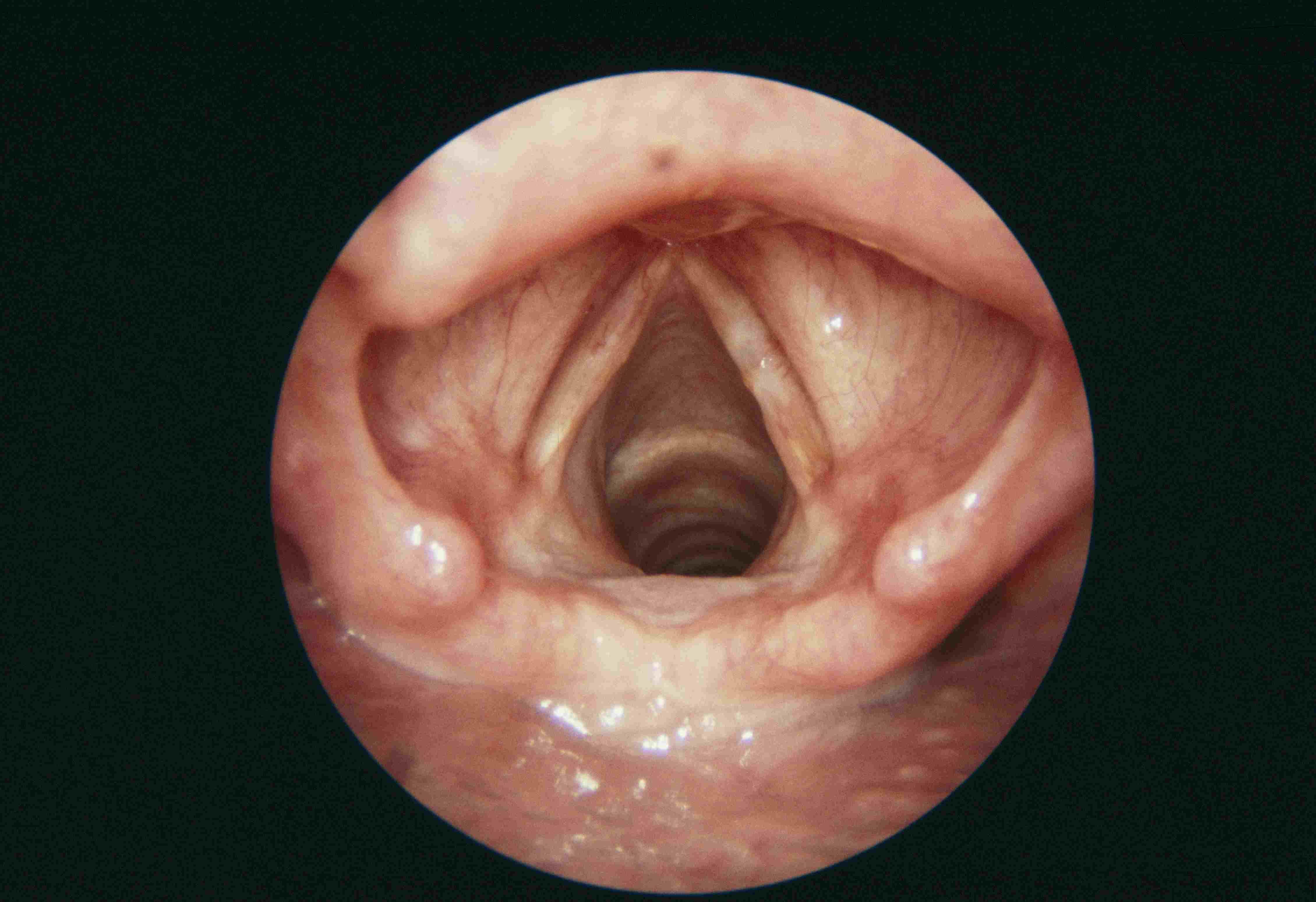 Resting larynx