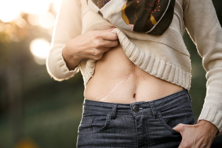 Woman showing transplant scars.