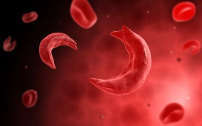 Sickle Cells