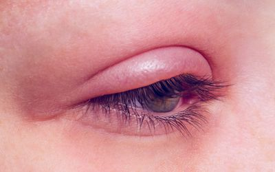 How to Avoid Getting a Stye