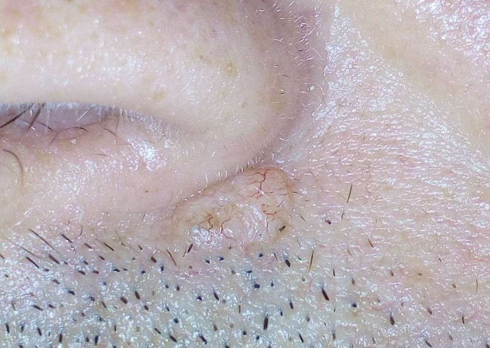 Basal cell carcinoma under the nose with telangiectasia