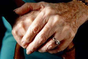 sun spots on hands of older woman