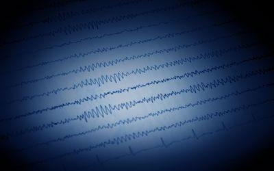Status Epilepticus: Symptoms, Causes, and Treatment