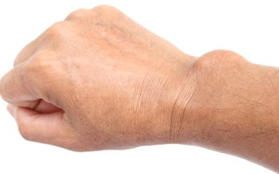 Wrist Ganglion Cyst - Lump on the Back of the Hand