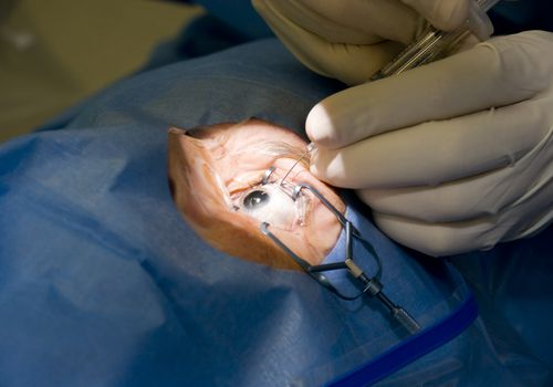 Close-up of surgeons hands performing manual eye surgery