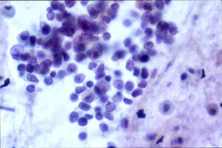 brochogenic carcinoma under the microscope
