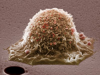 cervical cancer cell extreme closeup