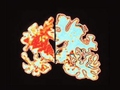 Alzheimer's disease brain vs normal