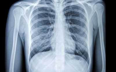 What Does It Mean To Have A Shadow On The Lung