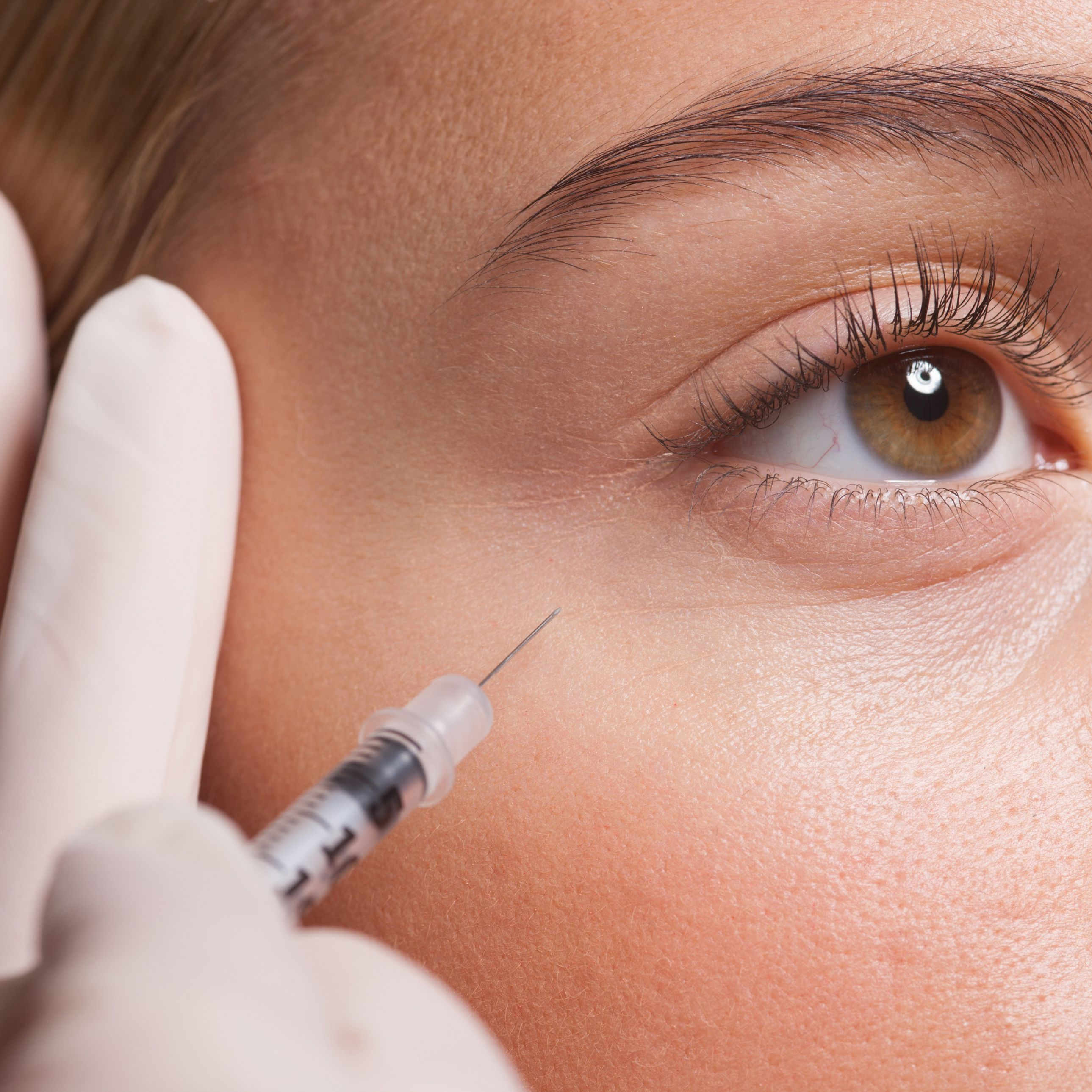 The Remarkable Story of Botox