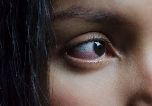 Eye Inflammation