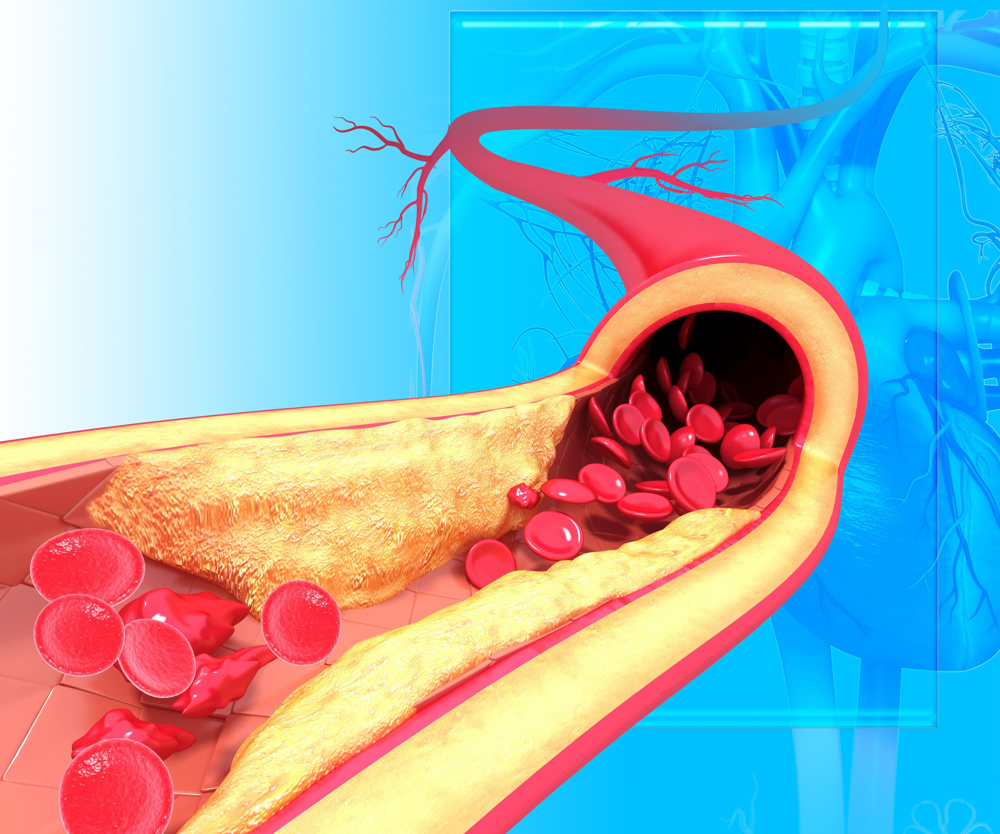 Что нужно знать о заболевании коронарной артерии