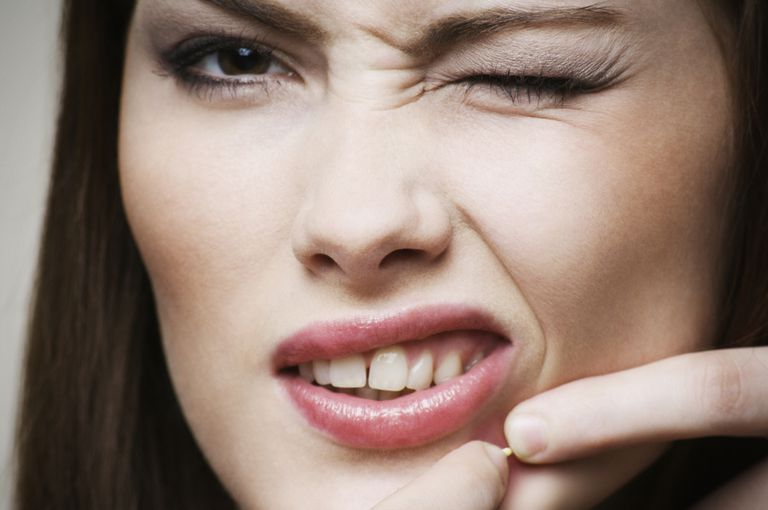 Woman squeezing a blemish.