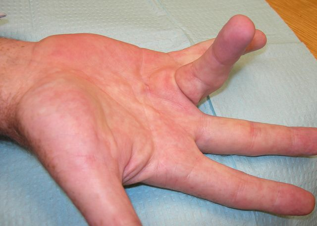 hand with ring finger extended