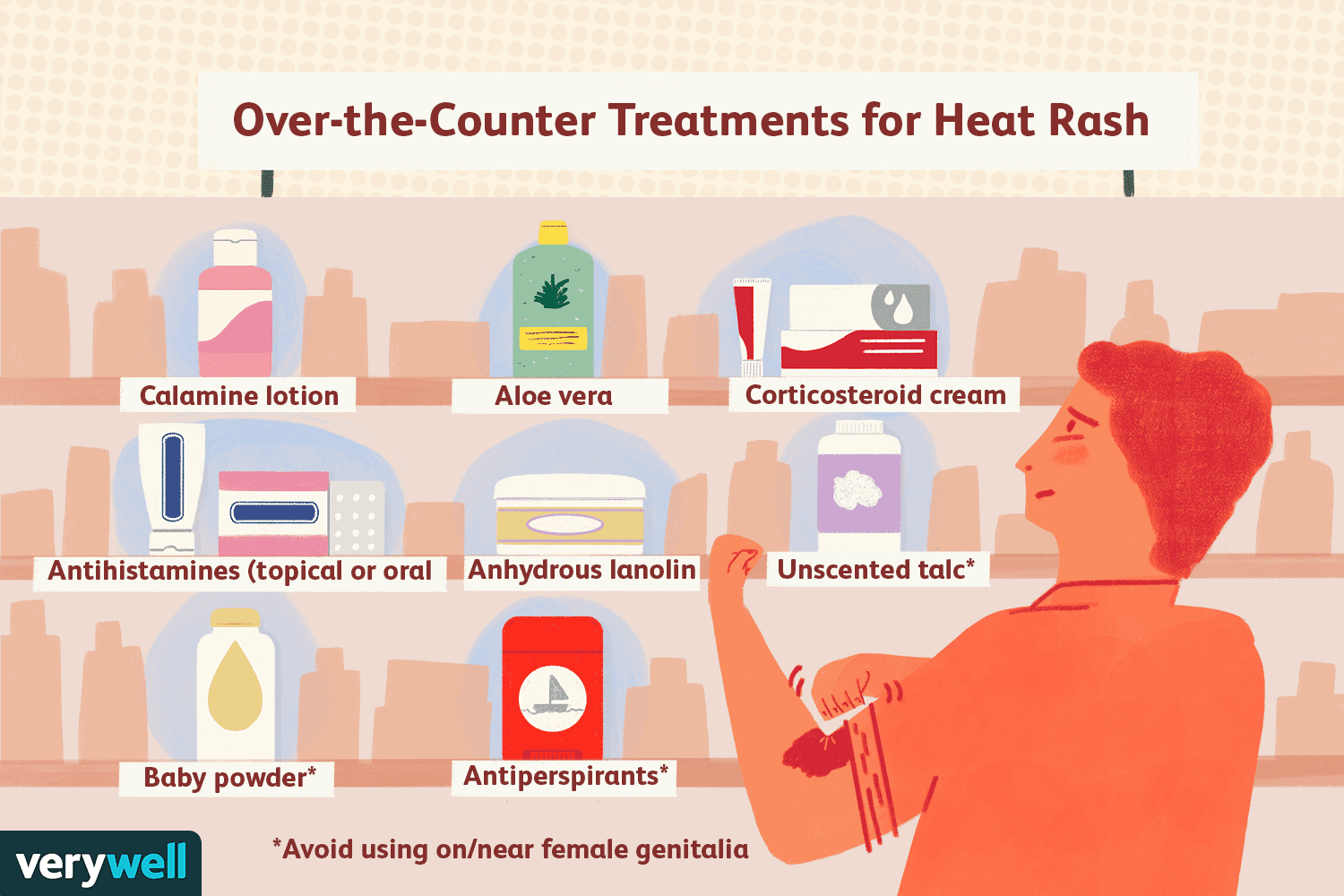 Over-the-Counter Treatments for Heat Rash