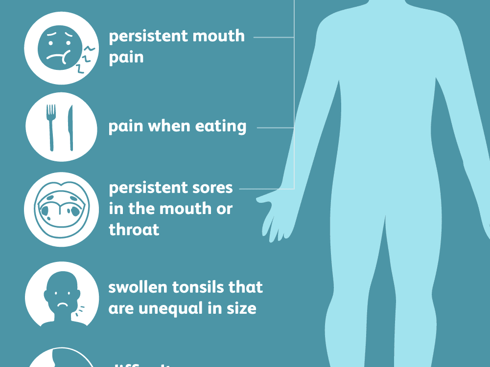 Tonsil Cancer Symptoms Causes And Treatments