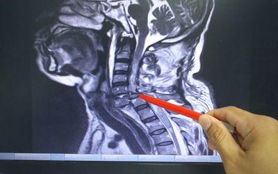 MRI Cervical spine
