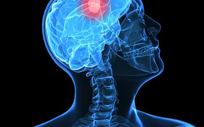 Signs and Symptoms of a Brain Tumor