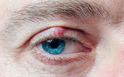 Man with chalazion on upper eyelid
