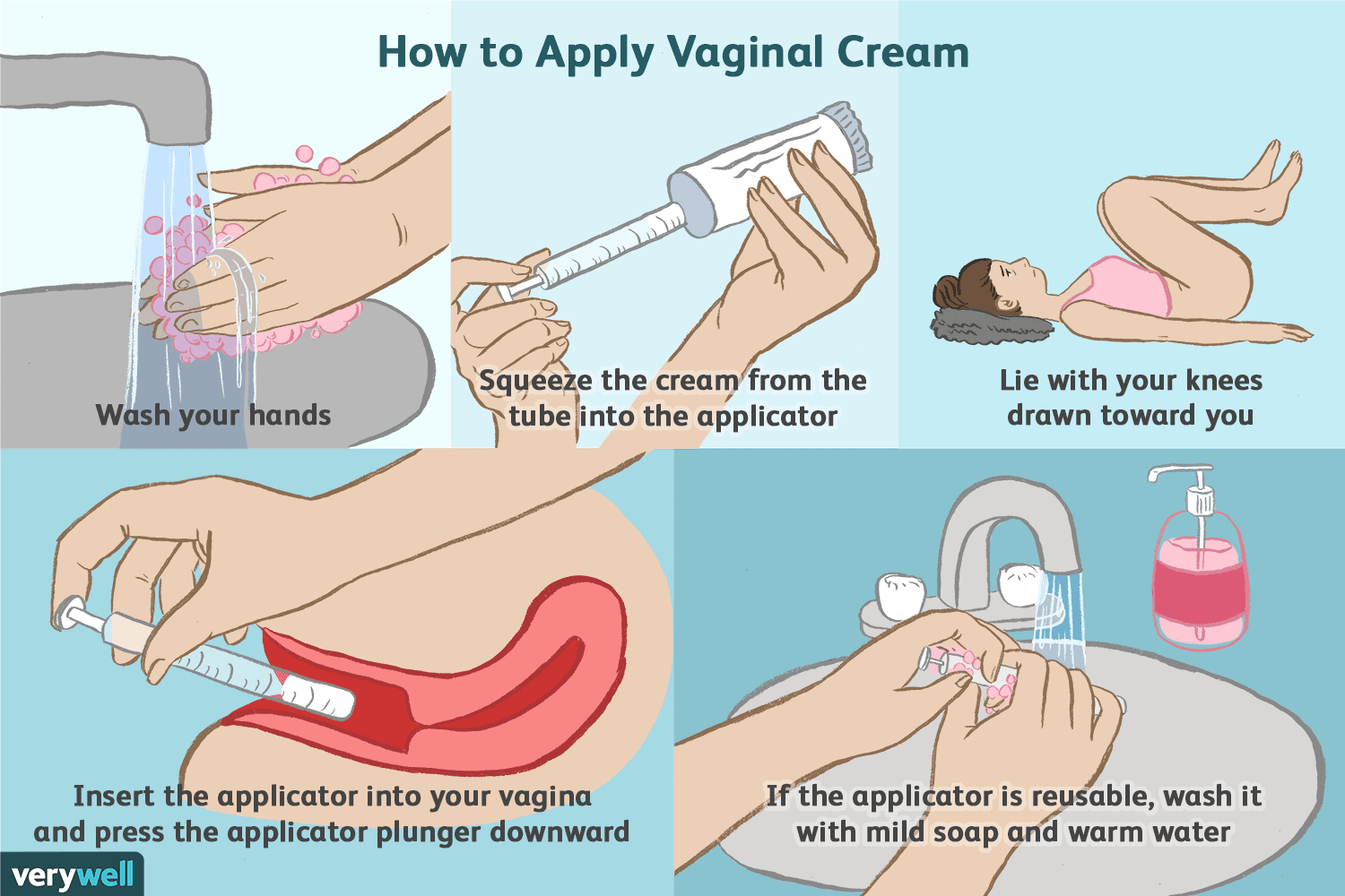 How To Apply Vaginal Cream Properly